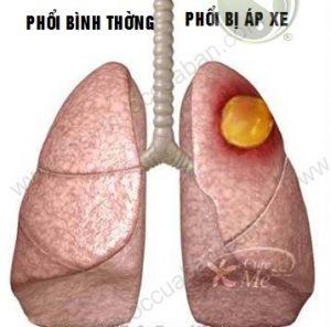 áp xe phổi