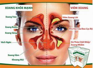 biến chứng của viêm phổi