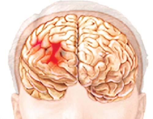 Cách phòng bệnh xuất huyết nội sọ - health-guru chất lượng cao