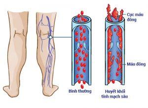 huyết khối tĩnh mạch sâu chi dưới