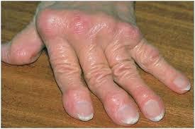 triệu chứng của thấp khớp cấp
