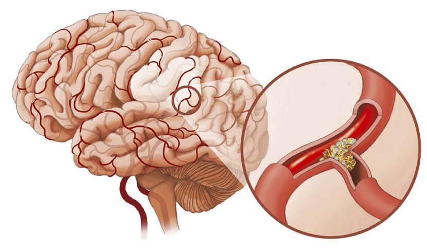 Triệu chứng của xuất huyết nội sọ - health-guru chất lượng cao