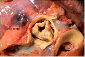 viêm nội tâm mạc nhiễm khuẩn