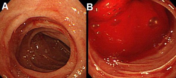 Viêm dạ dày tá tràng – nguyên nhân gây chảy máu đường tiêu hóa trên