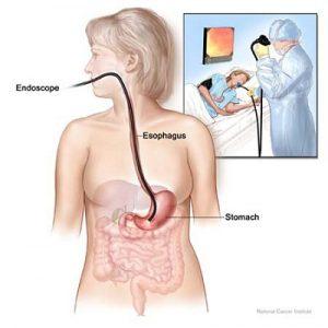 Chẩn đoán phình giãn thực quản