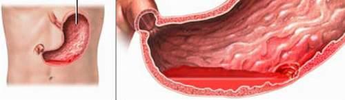 Hội chứng chảy máu trong