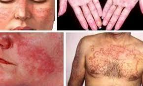 lupus ban đỏ hệ thống