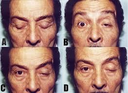 nhược cơ biểu hiện ở mắt