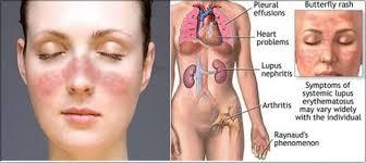 triệu chứng của lupus ban đỏ hệ thống