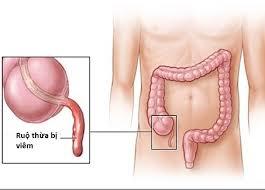 vị trí của ruột thừa trong ổ bụng
